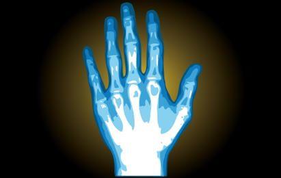 Ilustração de mão de raio-x