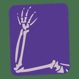 Radiografía plana de brazo roto