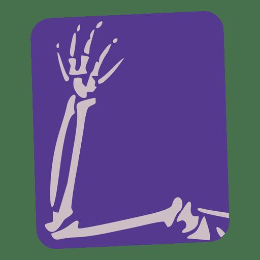 Broken arm flat xray Transparent PNG