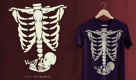 Pregnant X-Ray T-Shirt Design