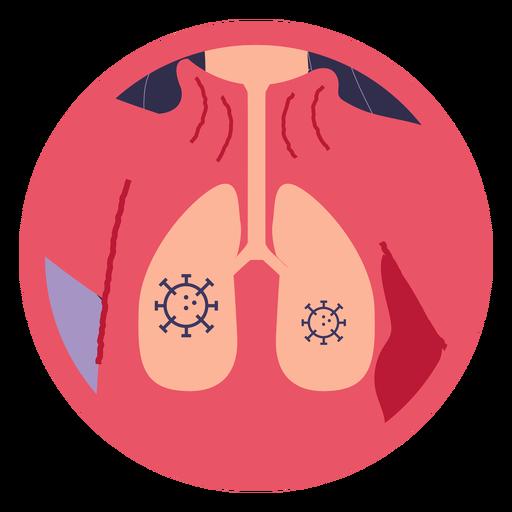 Covid 19 pulmones sintomáticos Transparent PNG