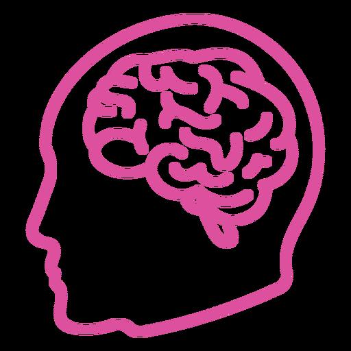 Brain in head stroke
